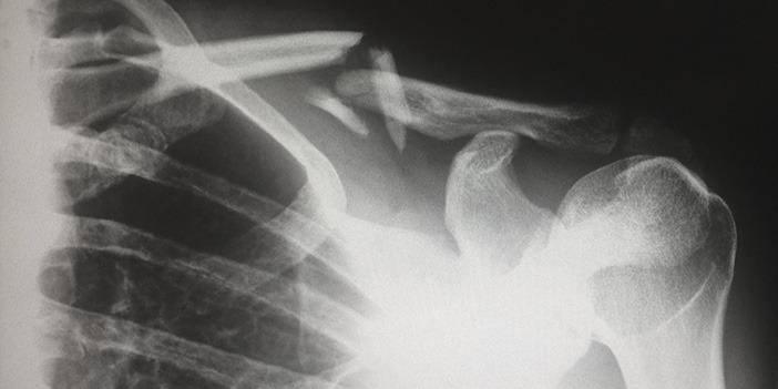 xray-showing-broken-shoulder-bone